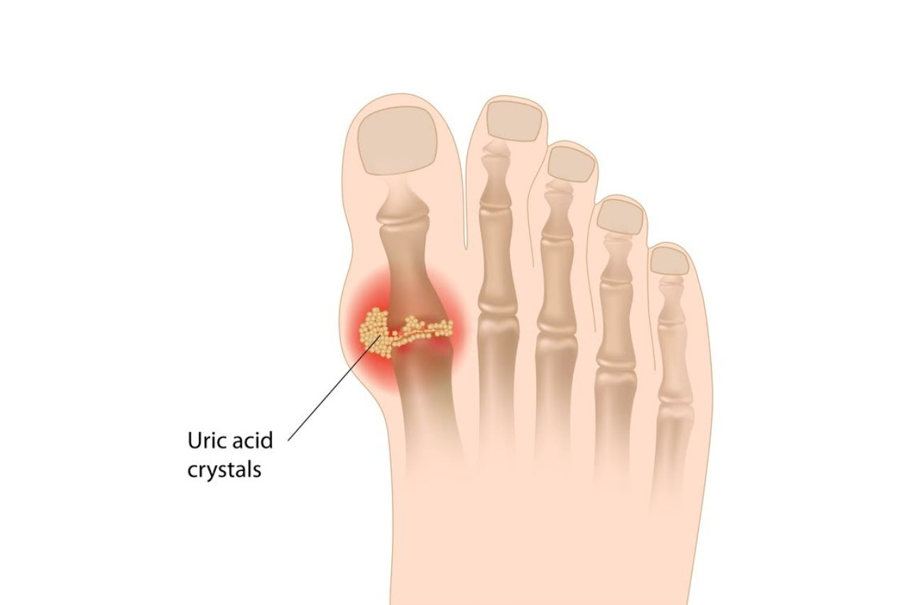 What to do about Gout?